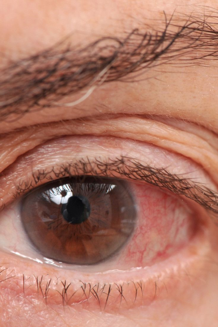 What Is Glaucoma? Symptoms, Causes And Treatment For The Eye Condition