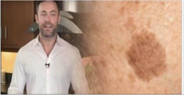 Este famoso dermatólogo revela: ¡como quitar las manchas marrones de cara y la piel con este simple truco!
