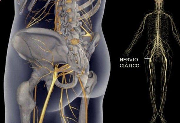 La ciática es el dolor causado por la irritación o la compresión del nervio ciático. Por lo general, afecta sólo a una parte del cuerpo, pero tiende a ser grave y debilitante. El dolor generalmente se extiende desde la zona lumbar a la parte posterior del muslo y hacia abajo a través de la pierna