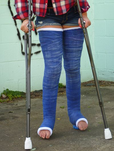 Double Long Leg Cast DLLC | Gips