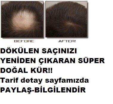 Saç dökülmesi oldukça can sıkıcı bir durumdur Bayanlar da bu durum daha da sorun haline gelebiliyor İster bayan olsun ister bay dökülen saçlarınız için artık üzülmeyin size saç çıkaran doğal kür tarifi 2 adet malzeme ile 2 aylık süre içerinde saç dökülmeniz duracağı gibi yeni saçlarınız çıkacaktır Gerekli malzeme ise sadece soğan ve bal Evet … … Okumaya devam et →
