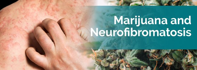 Medical Marijuana for Neurofibromatosis | Marijuana Doctors