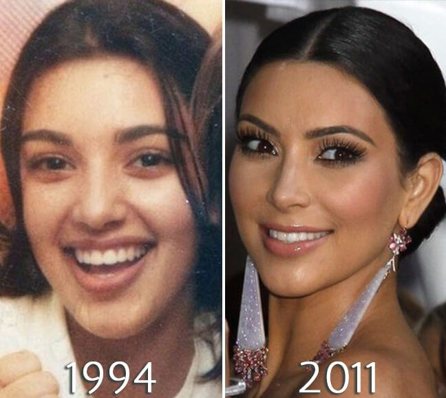 Kim Kardashian Eyelift Before And After In 2019 Kim