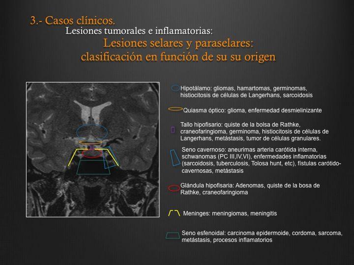 SERAM 2012 / S-0898 / Cómo interpretar un estudio de Resonancia ...