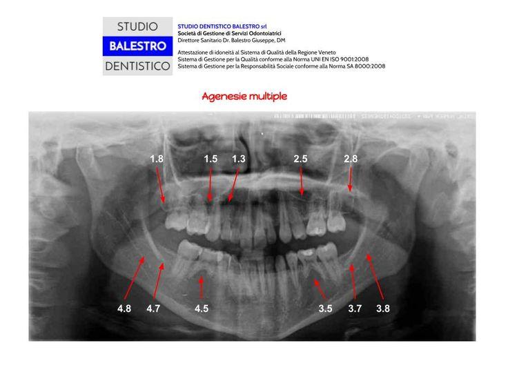 Casi clinici ortodontici Agenesie multiple http://www.studiodentisticobalestro.com/2014/10/agenesie-multiple.html