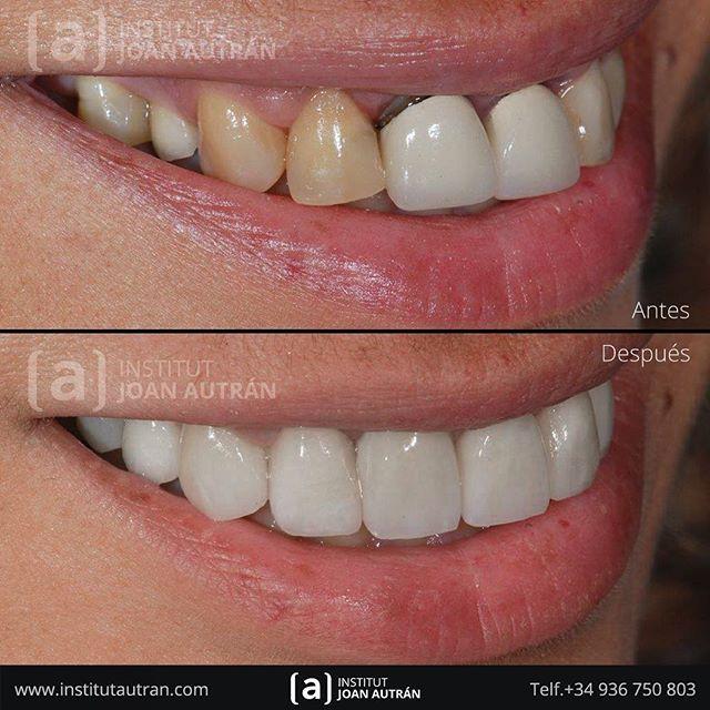 Gracias A Las Exclusivas Carillas Sin Tallado Top Smile Conseguimos Unos Resultados Muy Naturales Y Duraderos Solicite Informació Dental False Teeth Dentures