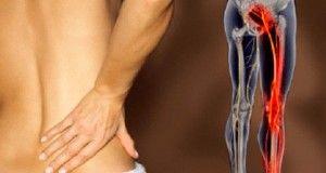6 Remèdes naturels pour soigner la douleur sciatique