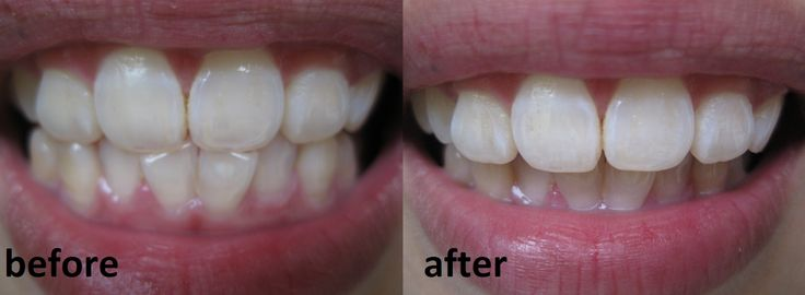 Brighter and whiter teeth is something that I have lusted over for the longest time. I remember as a child, I didn't know about veneers ...
