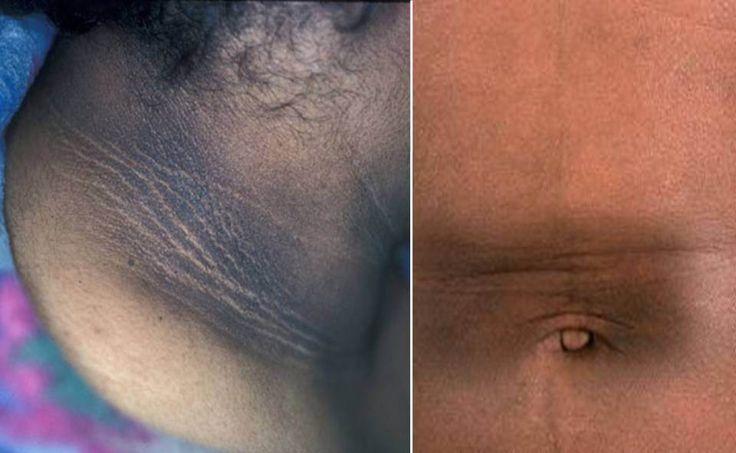 Hyperpigmentation Remedies