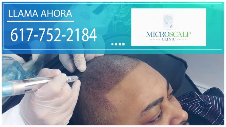 Micro scalp clinic ( Spanish )