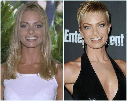 Jaime Pressly Plastic Surgery Before And After Photos