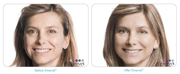 This patient's concern was the increased number of wrinkles that were appearing on her face as she aged.  Fillers for wrinkles is becoming more and more popular.  The results that this patient has received is a natural more youthful appearance, and without the before and after photos shown you wouldn't know she had had anything done.  The key to good fillers, is a for them to appear natural.