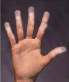 February is Raynaud's Awareness Month. Raynaud's Syndrome