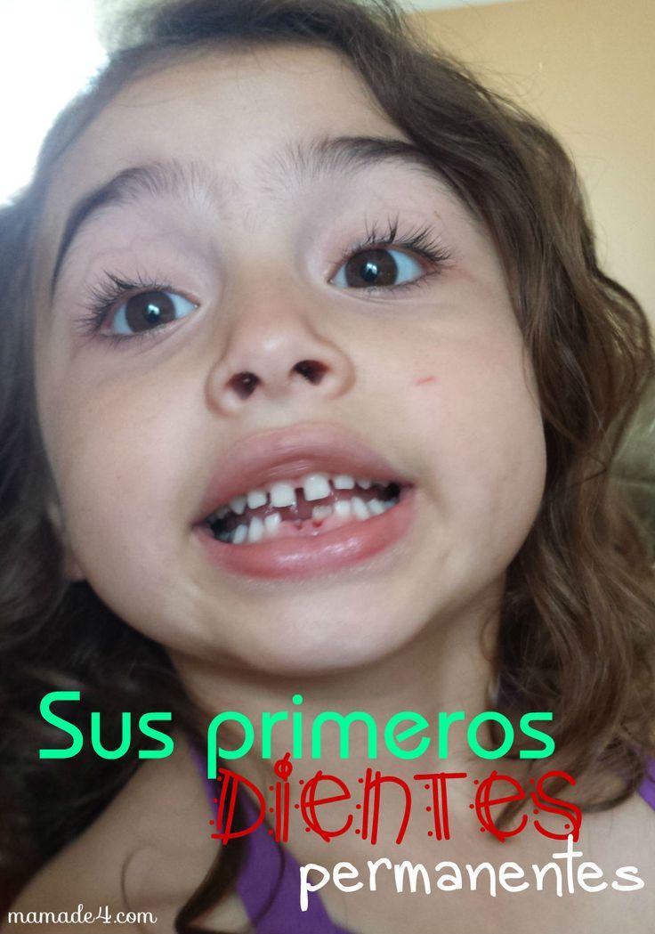 Los primeros dientes permanentes de Jomarie. http://www.mamade4.com/?p=858