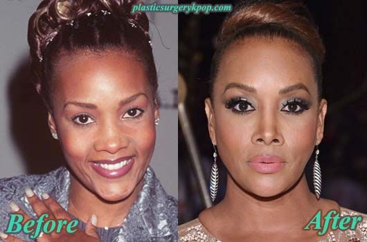256 Best Celebrity Plastic Surgery Images By Mimi On