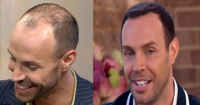 Jason Gardiner Hair Transplant Before And After