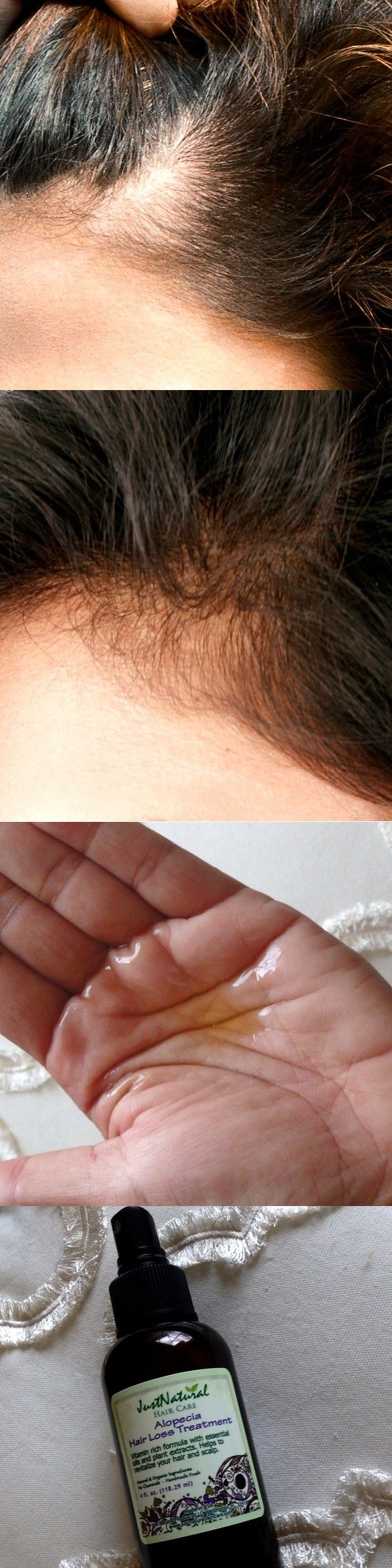 I have been fighting with alopecia for almost 3 years now and am only 27 years old. I have tried everything including steroids and biotin without much improvement. Out of desperation I decided to try this and I noticed very small results after about one month. It's been three months since I started and my spots are almost filled in! I use a tiny amount and use my fingers to apply it to my scalp. I am so thankful that I found this product.
