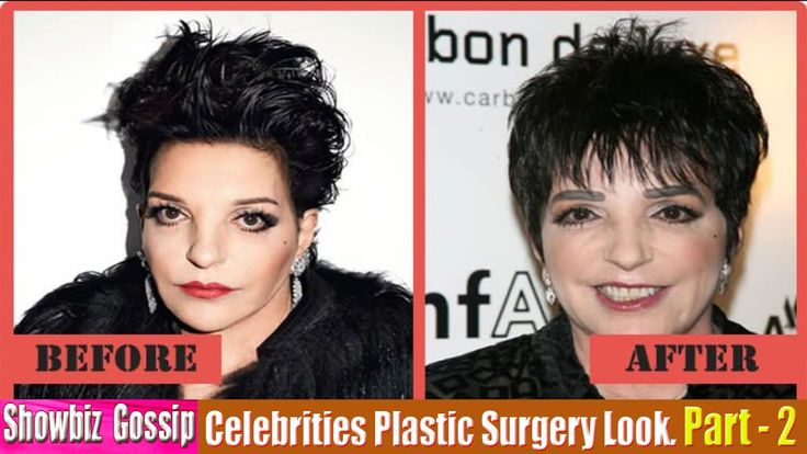 101 Celebrities Before and After Plastic Surgery Look. (11-20) | Part - 2.