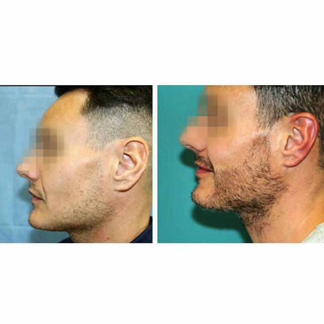 Wear the beard you've always wanted 🙋 •Before and After•  We transplanted 1003 grafts to create this natural defined look. Great results👍  #hair  #hairloss  #hairlosstreatment #beard #hairtransplant #beardtransplant  #happyclient #fue #transformation #beforeandafter #drraghureddy