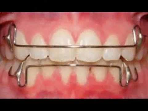 Retainers After  Braces - Types Of Retainers After  Braces
