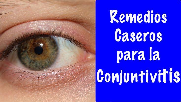 TRATAMIENTOS PARA LA CONJUNTIVITIS - Remedios caseros para la conjuntivitis CLICK AQUÍ PARA VER EL VIDEO >>>  http://youtu.be/PHp7p0K7Cbk