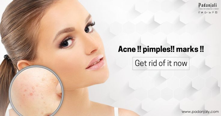 Get ride of pimples and marks now #pimple #marks #ayurveda #tradition #herbs https://padanjaly.com/skin-problems-treatment.htm#skin_rashes