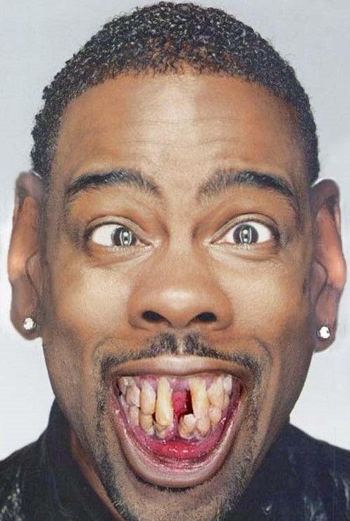 #Oddities Super wierd! http://www.funnypica.com/ugly-teeth