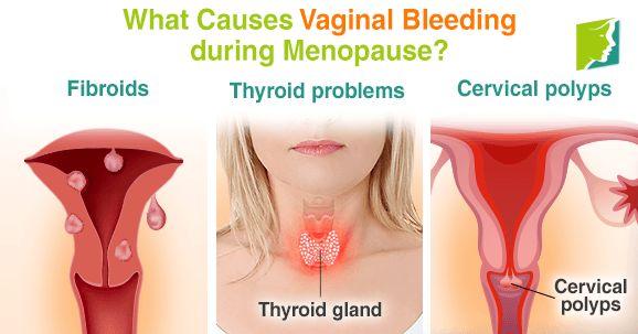 vagina bleeding between periods jpg 1500x1000