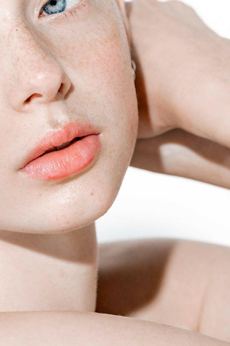 Hormonal facial hair