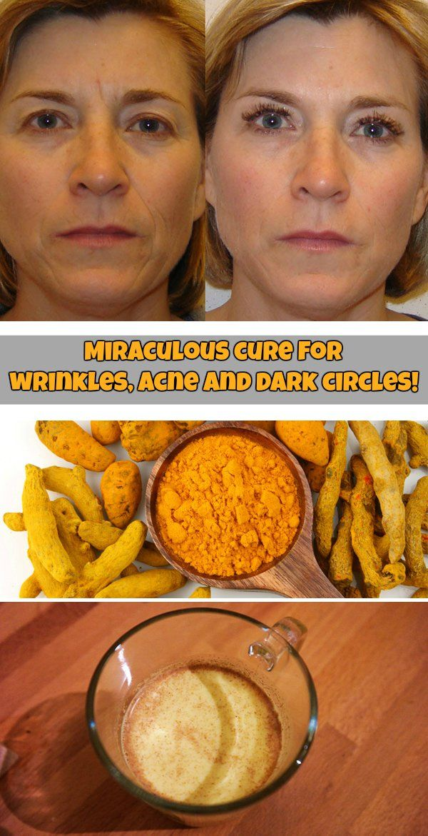 Miraculous cure for wrinkles, acne and dark circles!
