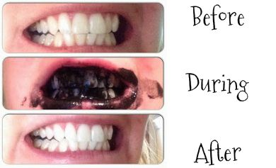 5 Diy Teeth Whitening Methods Incl Activated Charcoal As Per Pic