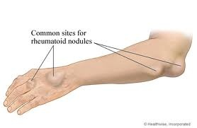 RA Complications - Common sites for rheumatoid nodules