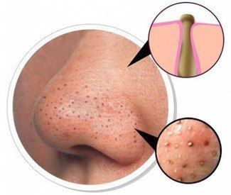 Getting rid of Blackheads: Take gel facial wash and mix with a tbsp of baking soda & a tbsp of salt. Apply to damp skin with cotton pad; leave for 5 mins. SO GROSS!