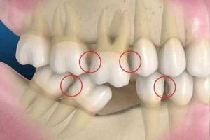 Consecintele in timp ale pierderii unui dinte – STOMATOLOGIE
