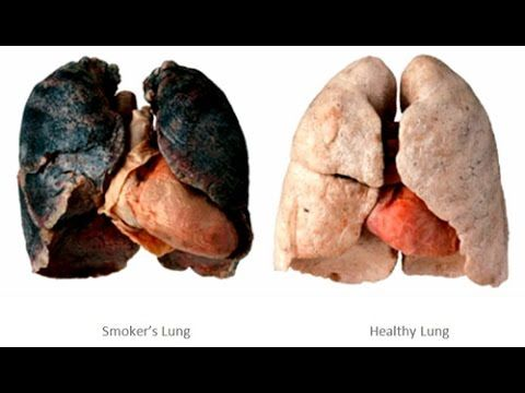 Effects of smoking and side effects of smoking Quit Smoking motivation