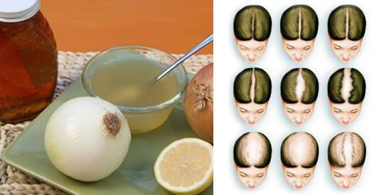 I trattamenti contro la caduta dei capelli sono numerosissimi, e vengono usati da secoli. L'industria [Leggi Tutto...]
