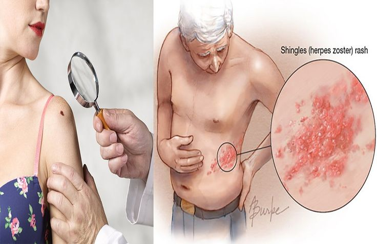 7 Most Common Skin Disorders In The United States