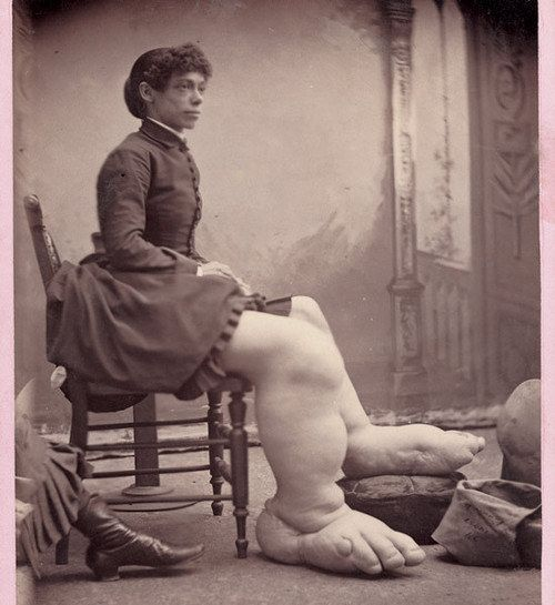 """Fanny Mills, the Bigfoot Lady 