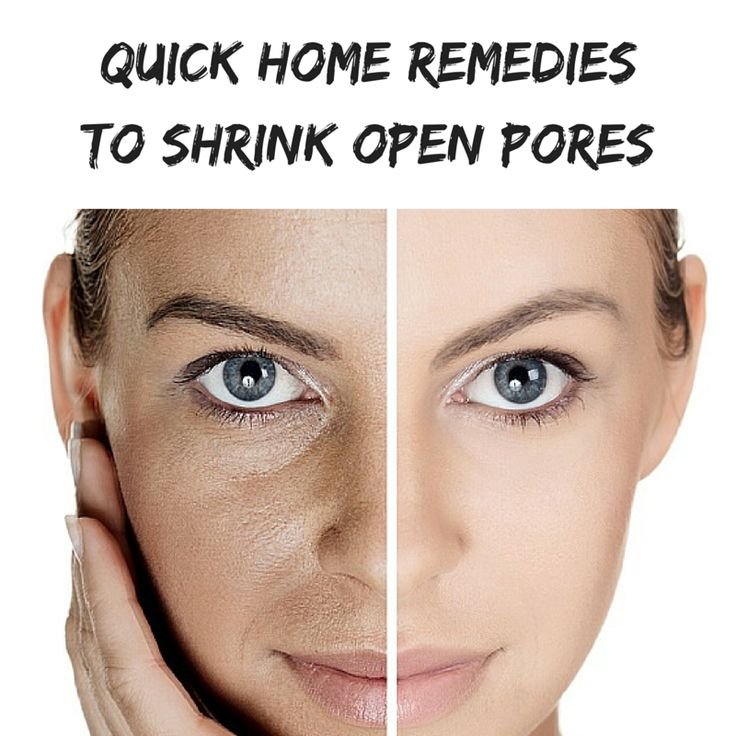 Quick Home Remedies To Shrink Open Pores PoresOnNose