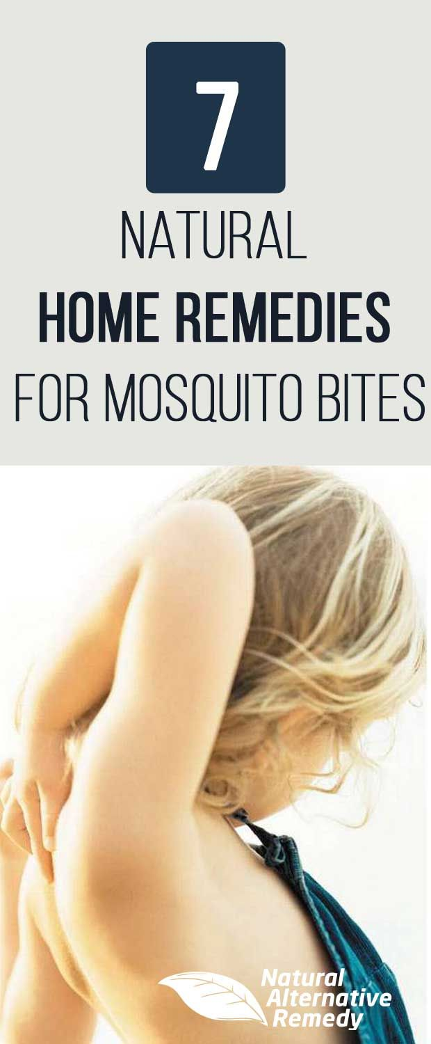 Ditch the itch with these 7 natural home remedies for mosquito bites (that really work!). #homeremedies #ditchtheitch | NaturalAlternativeRemedy.com