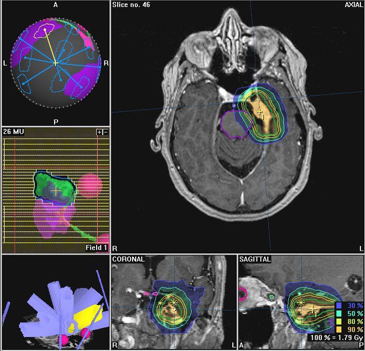 Die hier angeführte Liste zeigt welche Metastasen und Tumorerkrankungen mit Hilfe der präzisen stereotaktischen Bestrahlungstechnik behandelt werden können.