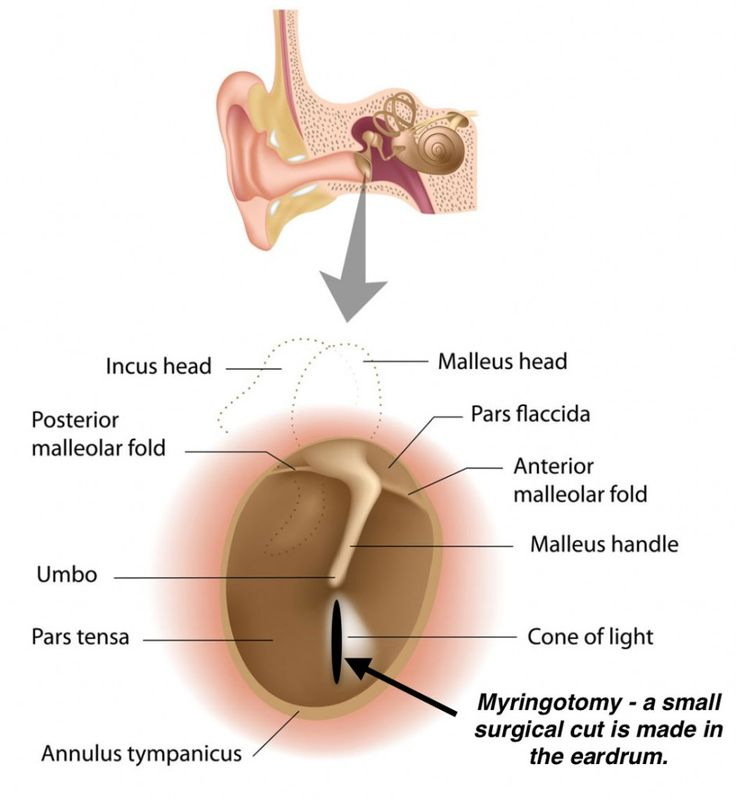 64 best Otorhinolaryngology images on Pinterest   Anatomy, Ears and ...