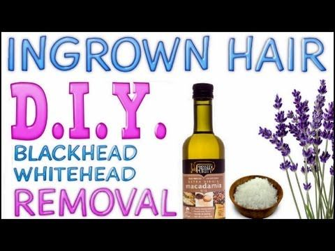 how to get rid of strawberry legs diy