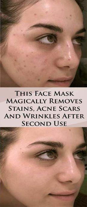 This Face Mask Magically Removes Stains, Acne, Scars And Wrinkles After Second Use