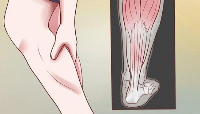 Les crampes nocturnes dans les jambes sont des douleurs qui surviennent pendant les heures de sommeil. Elles peuvent réveiller une personne et se produire la nuit en raison des heures prolongées d'inactivité. Les crampes nocturnes surviennent fréquemment dans le mollet, mais peuvent également causer des douleurs dans les cuisses et les pieds.