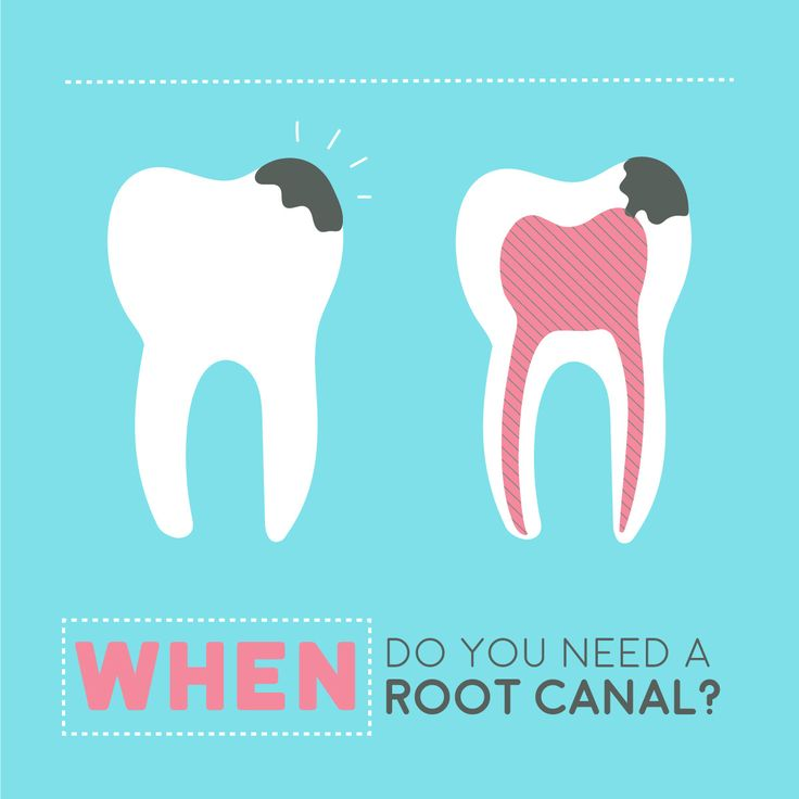 ROOT CANALS SAVE TEETH, but are widely misunderstood! They help when the soft tissue inside a tooth gets infected.  It's Root Canal Awareness Week (bet you didn't know that even existed, lol!)