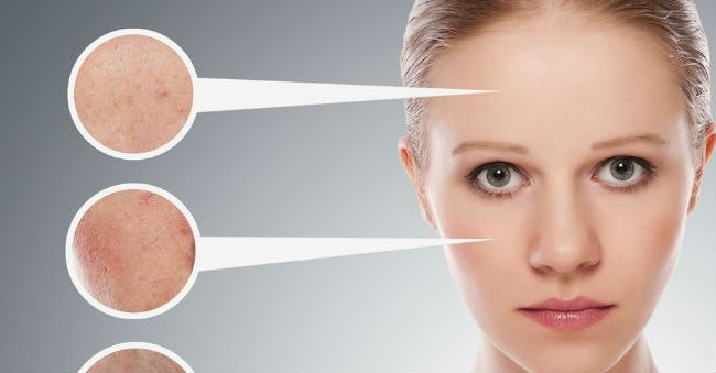 Macchie del viso: rimedi naturali