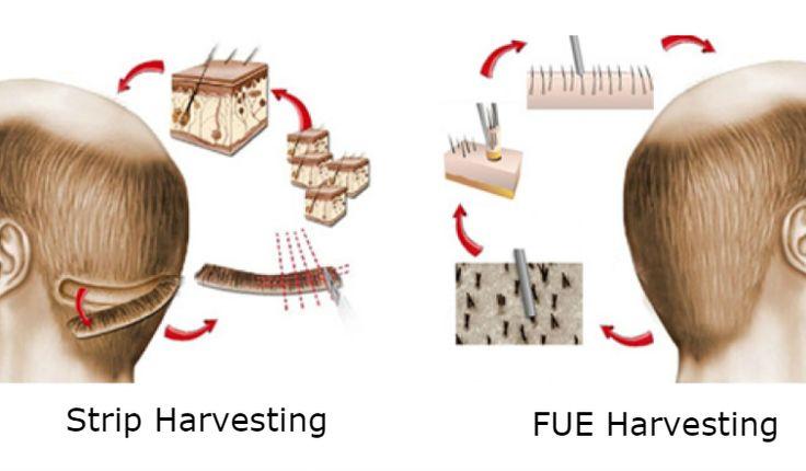 Strip Harvesting VS FUE Harvesting
