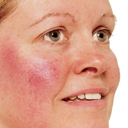 Natural Ways to Treat Rosacea and Redness Rosacea and redness can strike anyone, and when they do, they make themselves obvious. With rosacea being one of the more visible conditions, many people wish to treat it as quickly as possible. If you find yourself dealing with rosacea and skin redness,...