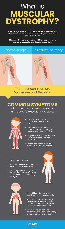 Muscular dystrophy symptoms